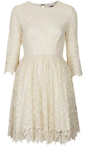 Scallop Hem Lace Dress