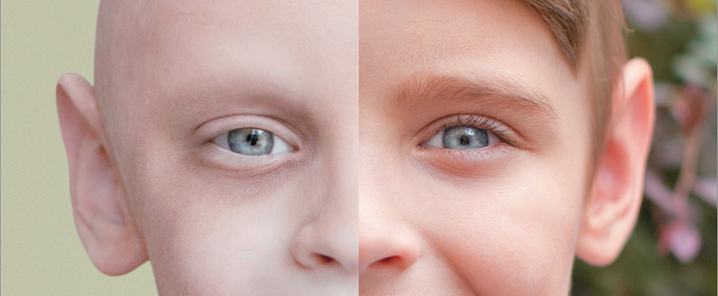 Before and After Photos of Children Cancer Survivors Will Melt Your Heart
