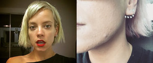 Lily Allen's Selfie Proves Everyone Gets Acne — Even Celebrities