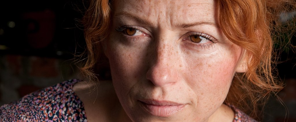 Experts Explain Everything You Need to Know About Rosacea