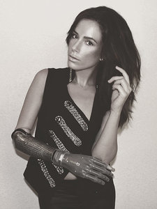 Model With Bionic Arm to Walk in New York Fashion Week: 'It's Been Quite a Journey'