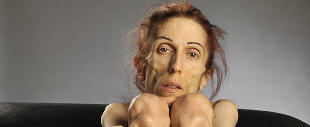 You'll Be So Inspired by What This Woman Looks Like Now After Her Battle With Anorexia