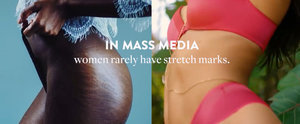 You've Never Seen Stretch Marks in the Media Like This