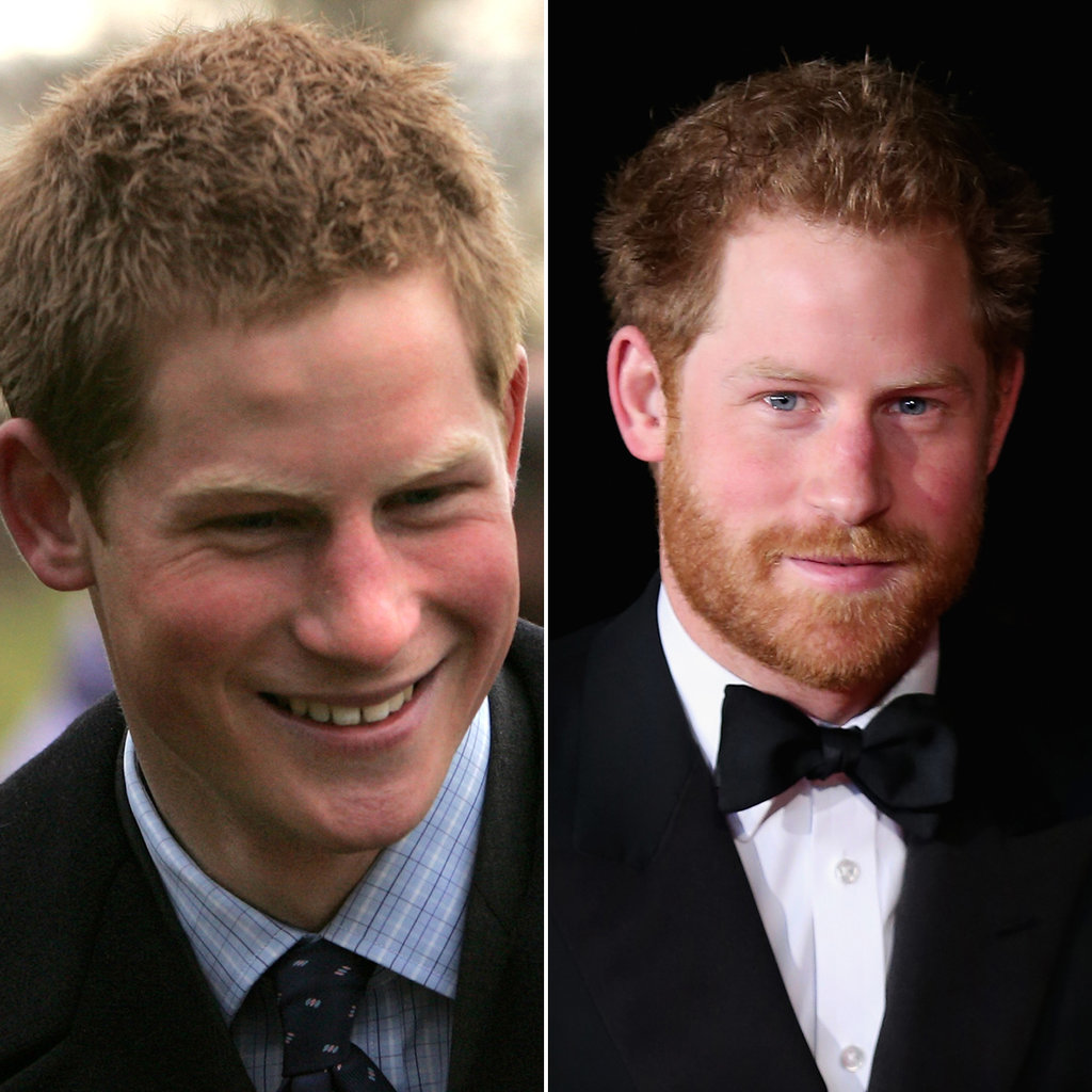 Prince Harry in 2005 and 2015