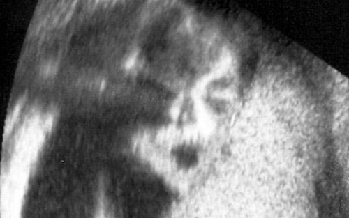 Man in the Mirror or Plain Old Ultrasound?
