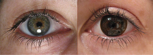 Wear Contact Lenses? Keep These in Mind