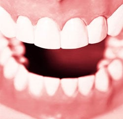 Stress Can Affect Your Smile Too