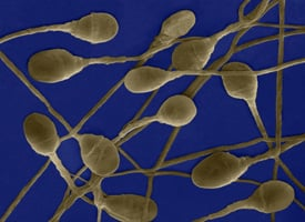 Alcohol's Effect on Sperm
