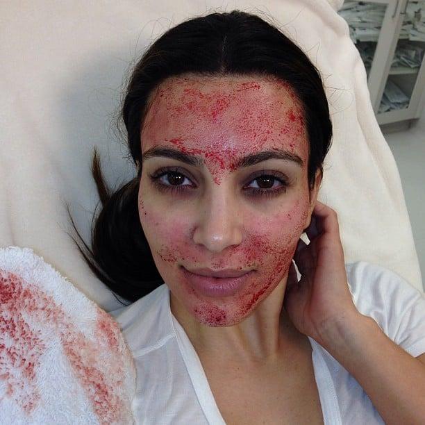 Kim Kardashian tried a vampire facial. Source: Instagram user kimkardashian