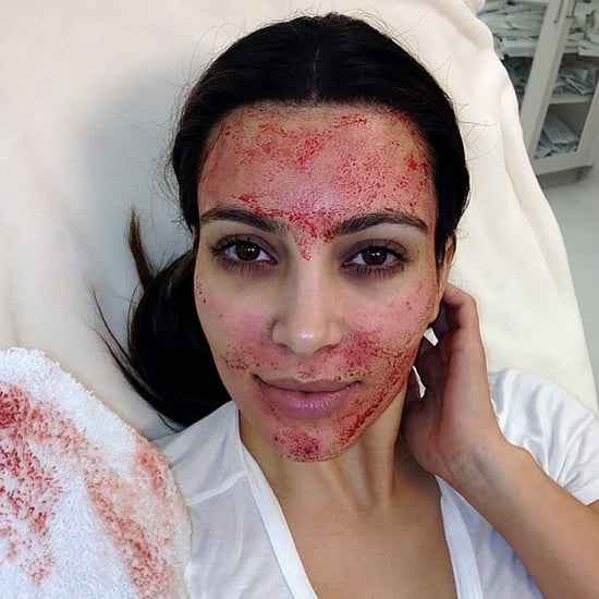 Move Over Vampire Facial! Vampire Breast Lifts May Be the New Bloody Beauty Trend
