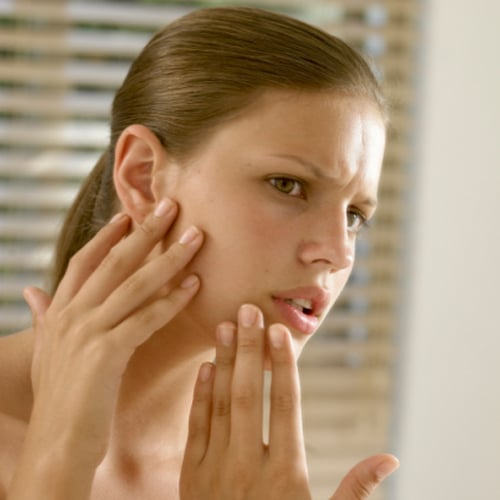 Get Rid of Pimples Without Popping