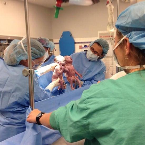 Mono Twins Born Holding Hands