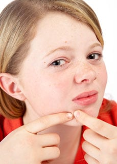 New Research Suggests Acne, Not Accutane, Causes Depression in Teens