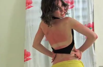 How to (and NOT to) Treat Sunburns