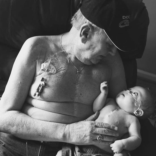 Grandfather and Grandson With Matching Heart Surgery Scars