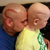 This Dad Got a Tattoo to Match His Son's Cancer Scar to Help Him Feel More Confident
