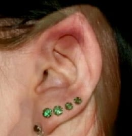 Elf Ear Surgery: Video of a Woman With Spock-Shaped Ears