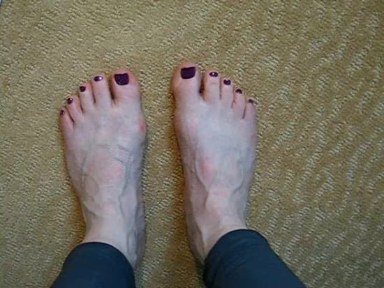 Running Prehab: Toe Scrunch Video