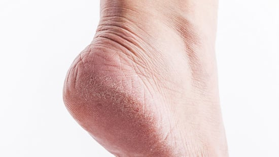 Once And For All, This Is How To Fix Dry, Cracked Feet