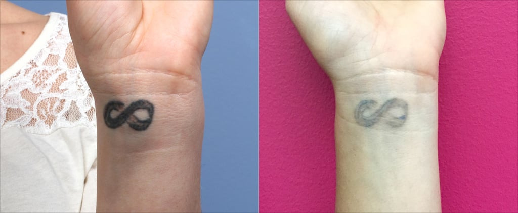 POPSUGAR Shout Out: What Happens When You Regret Your Tattoo
