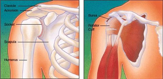 Torn Rotator Cuff = Painful Shoulder