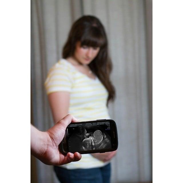 Smartphone Sonogram Capture