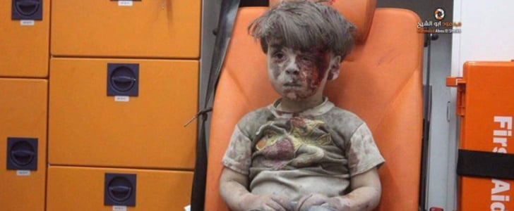 This Viral Photo of a Wounded Syrian Boy Captures the Horrors of War