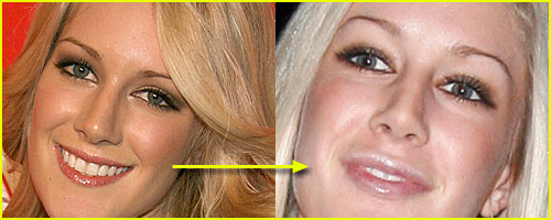 Before And After: Heidi's Lips