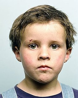 6 Tips for Identifying A Childhood Head Injury